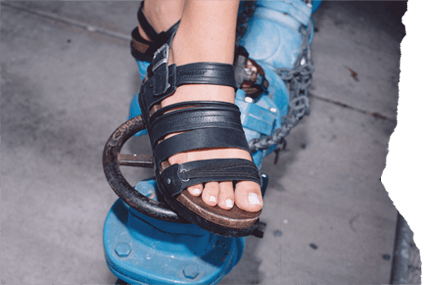 Sandal Tear